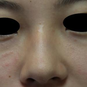 プチ鼻尖手術の直後経過