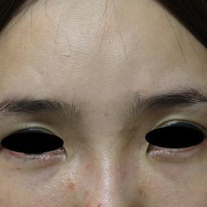 くぼみ目へのヒアルロン酸注入