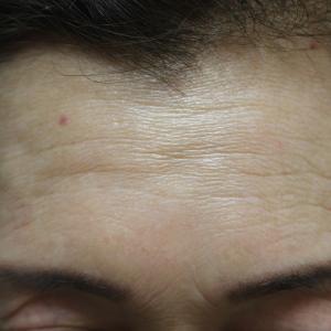額へのクレヴィエル・プライム(ヒアルロン酸)の注入