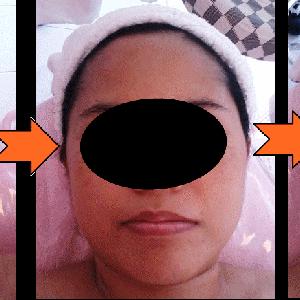 1回で小顔になれる小顔矯正(リンパ&理学整体)フェイスマッサージ!