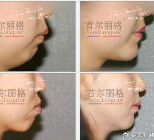突出し口手術か?両顎手術か?オーダーメイド型の手術が一番重要!