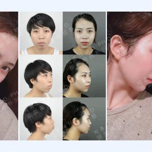 両顎手術前後の写真