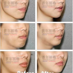 突出し口手術の方法