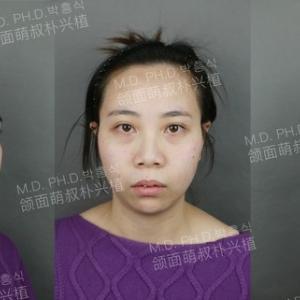 両顎手術患者様の症例写真