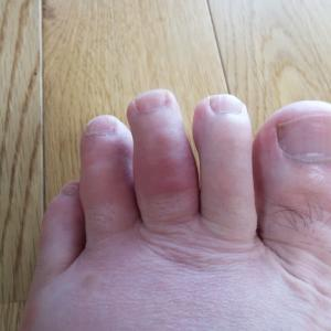 足の指がはれ上がった!痛い!!