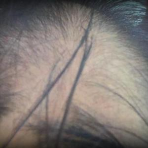 さようなら、さようなら、私の髪の毛。。。