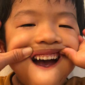 2本目の銀歯