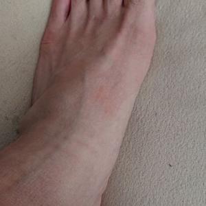 足痛からの・・・ #整形外科 #足 #病院 #痛み #腱鞘炎