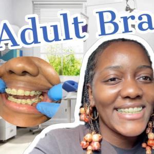 歯の矯正 adult braces