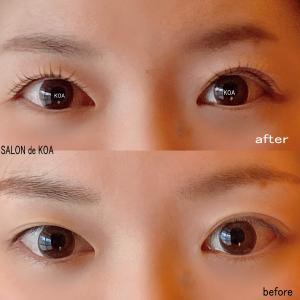 リフトアップカールで両目の形、大きさを微調整して左右の差を軽減