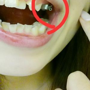 親知らず抜歯後の膿…