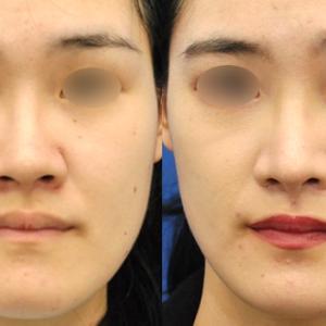 すっかり馴染んだ感じ【鼻の複合手術後4ヶ月】