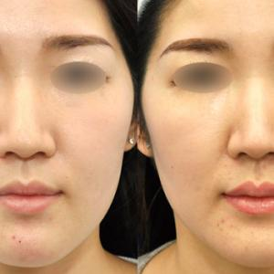 鼻の印象をこっそり変える。術後3ヶ月