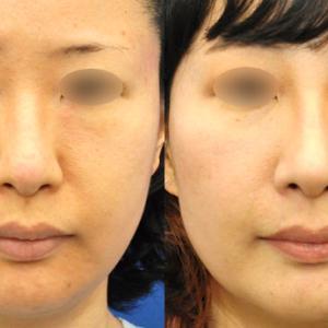 眉間から鼻先までを肋軟骨で。硬い肋軟骨(ろくなんこつ)を柔らかく使う(3ヶ月)