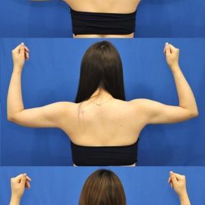 脂肪吸引で二の腕を細く。術後3ヶ月