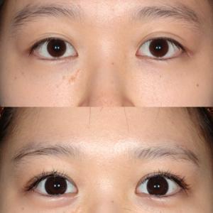 目が喜んでいる。全切開二重瞼形成 術後1ヶ月
