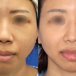 鼻整形の長期経過観察