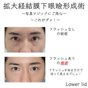 目袋(影クマ、黒クマ)の治療は術前後の写真にご用心