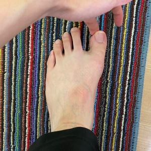 外反母趾に「靴下」アプローチ