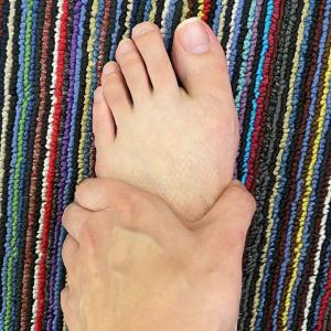 外反母趾だからゆったりした靴がよい?