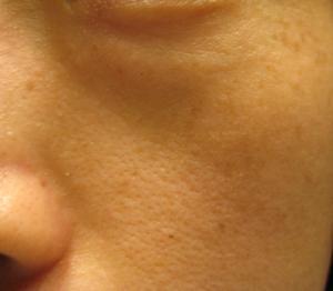 肌断食1年経過 くすみが改善、肌が白く!【肌画像あり】宇津木式スキンケアを一年継続