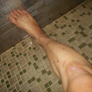接触性皮膚炎:この夏、私を襲った難病