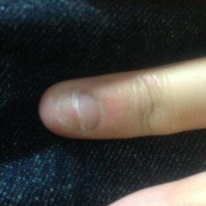 爪噛みは本当に悪いことなのかどうか