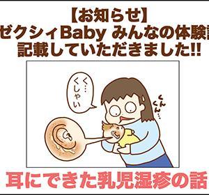 【お知らせ】耳にできた乳児湿疹