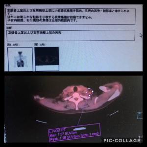 PET-CT結果