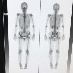 骨シンチとCT結果