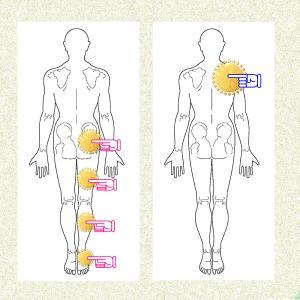 肩甲骨の変位を緩和させると坐骨神経痛の・・