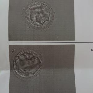 (23)体外受精5回目:採卵日から移植まで
