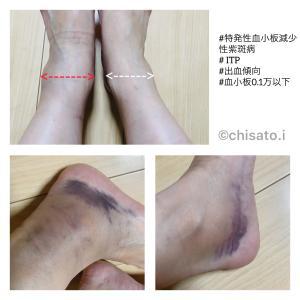 【緊急入院】突然の血小板減少(PLT15万→0.1万以下)