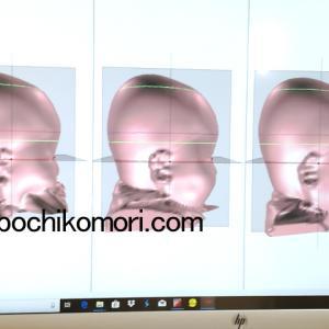 ヘルメット治療*測定3回目&4回目