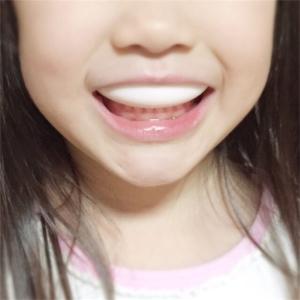 【子供の歯科矯正】マウスピース矯正を始めました