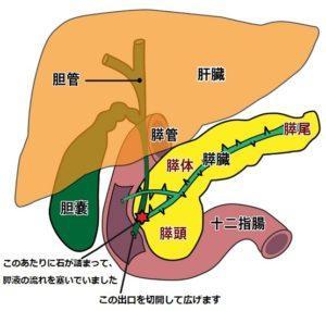 入院中にまた胆石が胆管に詰まって内視鏡手術