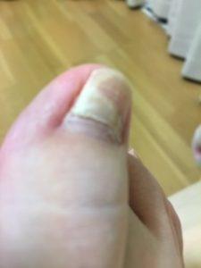 陥入爪の手術後に爪が二層に割れた話