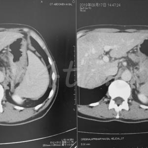 スキルス胃がん【CTの比較画像】進行をはじめてから7か月後