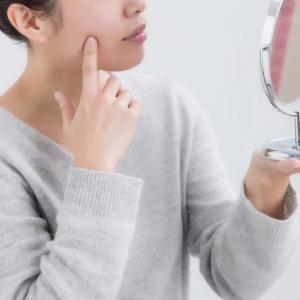 アクネ菌と皮脂の関係性