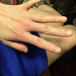 へし折られた小指は今も動かない。