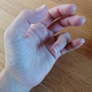*産後 ばね指