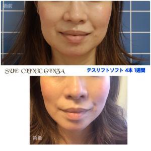 SUEクニック銀座 ♡TESS LIFT4本2か月症例♡