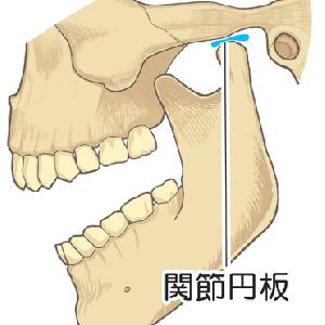 顎関節症の噛み合わせの違和感・口が閉じられない症状を改善するには