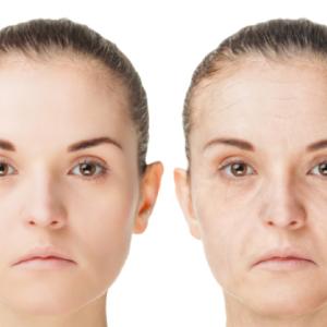 「老け顔」の原因・2つのタイプ〜あなたはどっち?