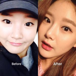 [韓国美容整形]id美容外科の可愛いも綺麗も手にした美女のREAL STORY♡