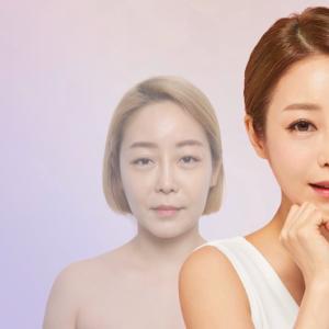 [韓国美容整形]アジア代表病院、バノバギ美容外科の美しさ広がるREAL STORY♡