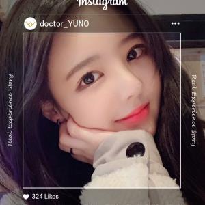 [韓国美容整形]ユノ整形外科で美少女に変身したREAL STORY♡