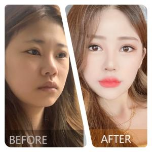 [韓国美容整形]ユノ整形外科で透明感溢れる美女誕生のREAL STORY♡