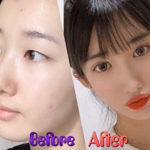[韓国美容整形]ユノ整形外科の目の手術で驚くべき大変身!♡♡