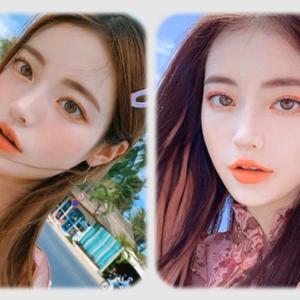 [韓国美容整形]ナム整形外科のビフォーアフター集♡♡